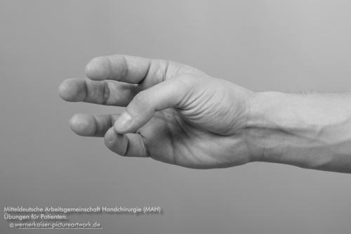 Mitteldeutsche Arbeitsgemeinschaft Handchirurgie (MAH)